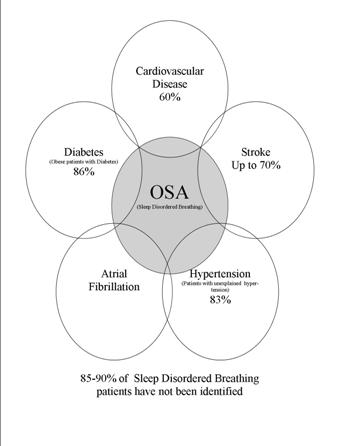 Prevalence of Obstructive Sleep Apnea (OSA)