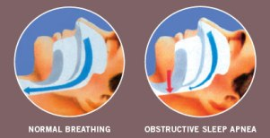 Obstructive Sleep Apnea Graphical Illustration